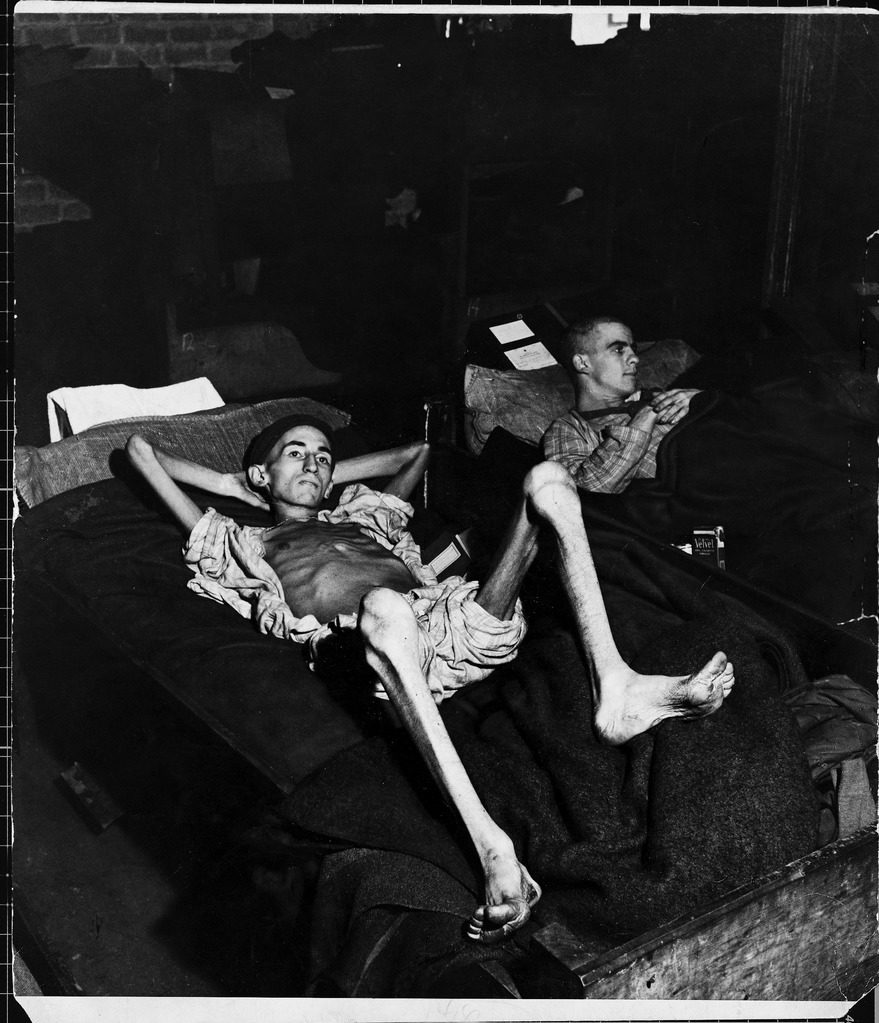 Private Joe Demler, a prisoner of the Germans for 3 months, revealing his skeleton-like limbs as he lies on cot. (Photo by John Florea/The LIFE Picture Collection © Meredith Corporation)